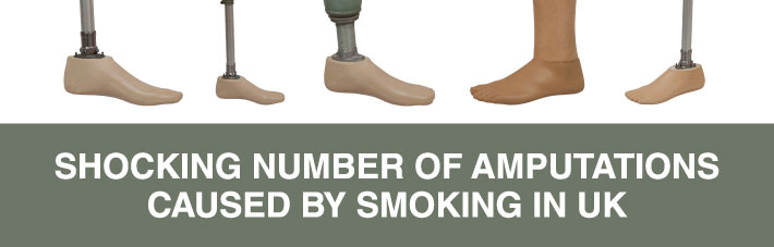 Shocking number of amputations caused by smoking in UK